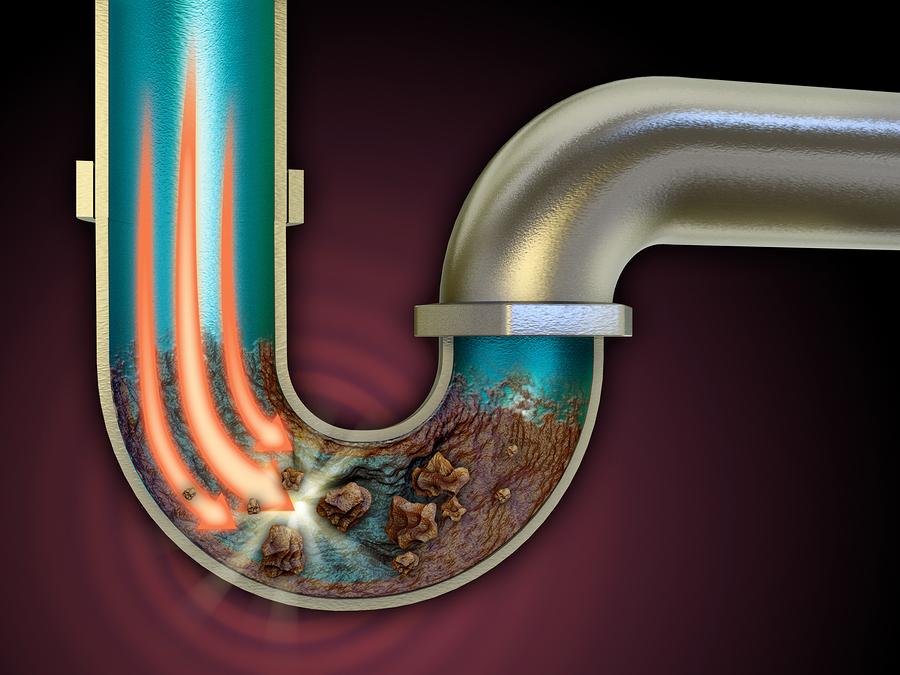 kaip užkimšti kanalizaciją